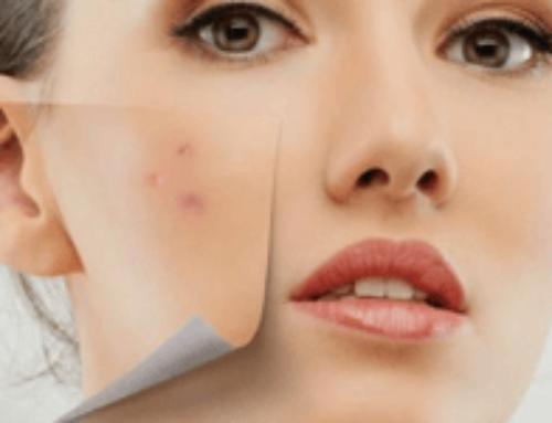 Лазерное лечение акне, рубцов и стрий