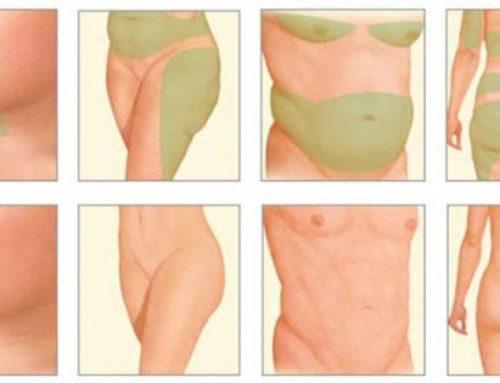 Липолитики для похудения различных областей тела
