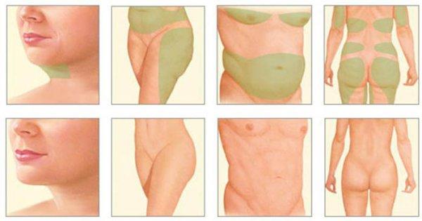 Липолитики для похудения противопоказания