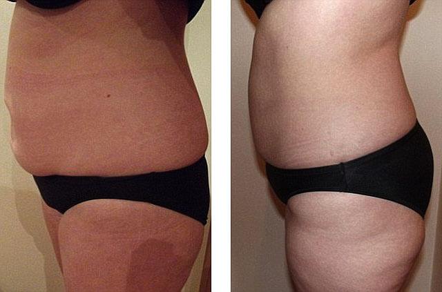липолитики для похудения побочные эффекты